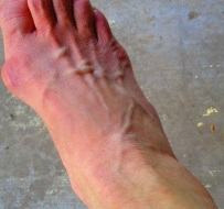 Feet burned at night, no circulation in toes swollen ankles appearance in morning upon waking