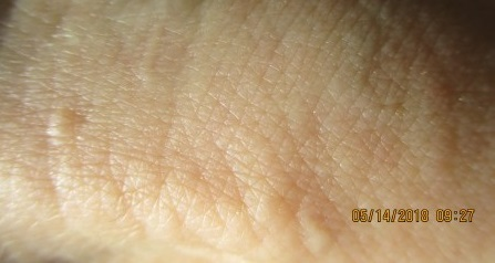 wrist-skin-with-odd-bumps-underneath
