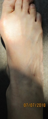 Foot almost normal size and color since all targeting centered on head and body after vacant home filled