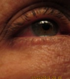 dark circles, red eye,m accentuated wrinkles